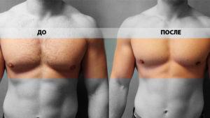 Гинекомастия до и после операции фото